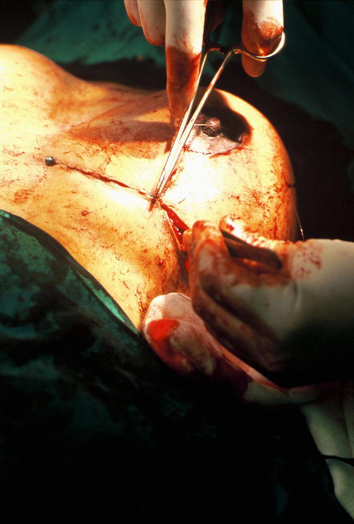 14. Breast Aesthetics - Reduction Series