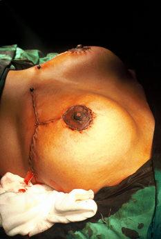 Breast Aesthetics_Reduction
