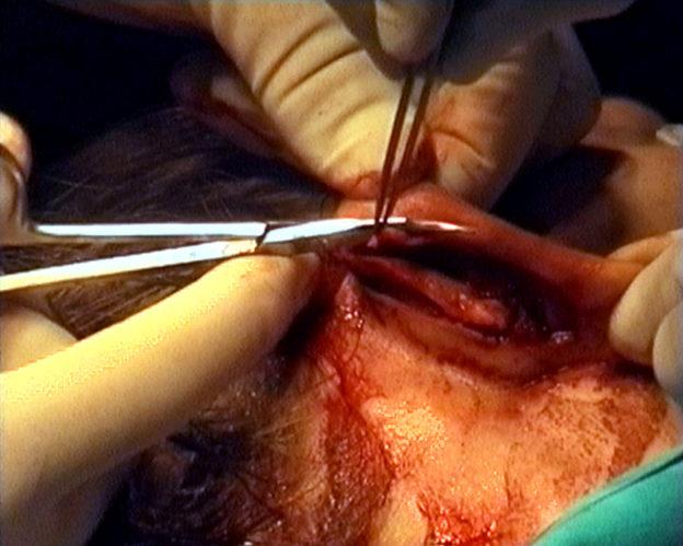 video still (ear pin-back)