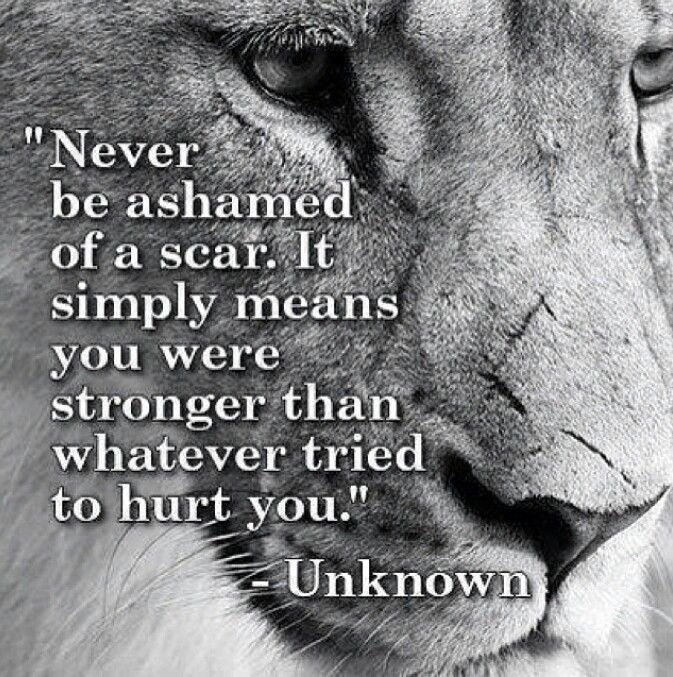 """Never be ashamed of a scar. It simply means you were stronger than whatever tried to hurt you."""