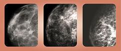mammografie di cancro al seno