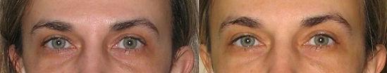 повдигане на веждите с ботокс за подмладяване на лицето