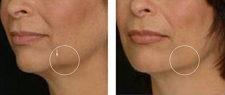 Нефертити лифт с ботокс за повдигане на увисванията в долната част на лицето