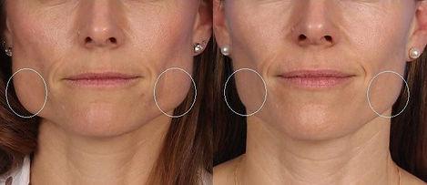 Поставяне на ботокс в дъвкателния мускул при бруксизъм (скърцане със зъби) и при хипертрофия на мускула за придаване на по-женствен вид на лицето.