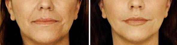 Повдигане на устните ъгли с ботокс за премахване на гневен или тъжен вид на лицето.