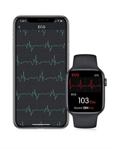 ECG smartwatch app