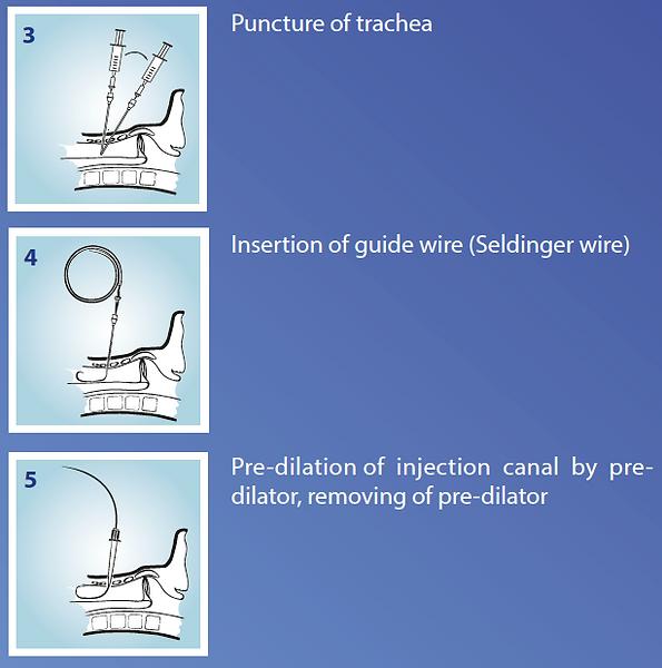 laryngectomized & tracheostomized