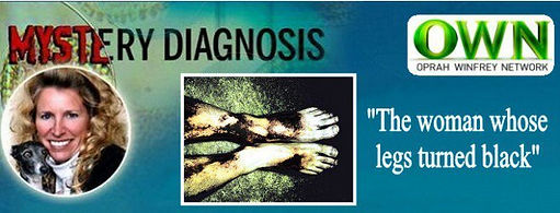 Mystery Diagnosis Cryoglobulinemia Awareness Diane Dike, Woman Whose Legs Turned Black, Tshirt