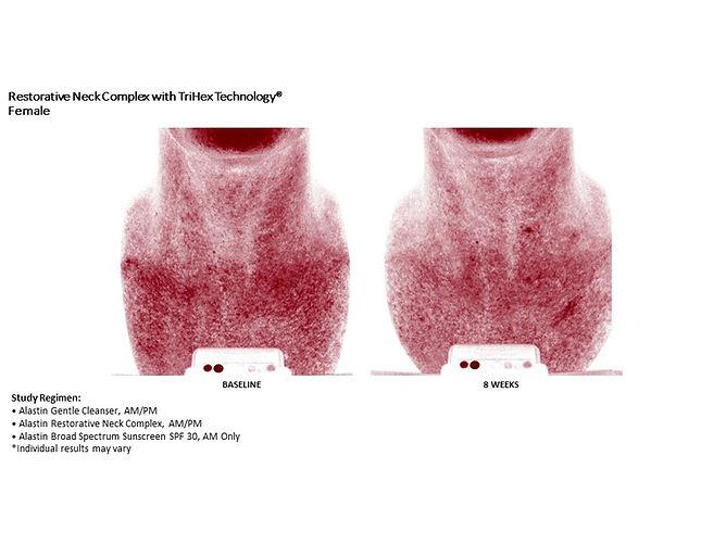 neck complex-7.jpg