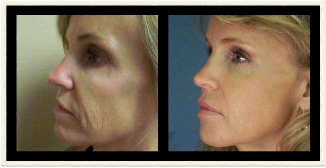 Bellafill Injections