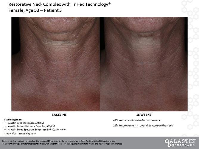 neck complex-5.jpg