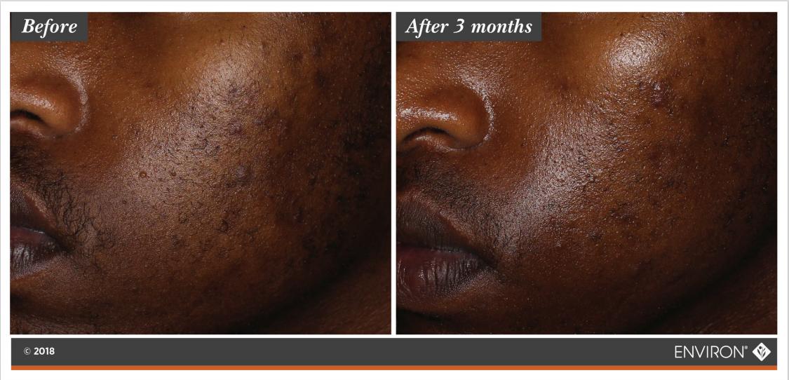 Skin Clarity