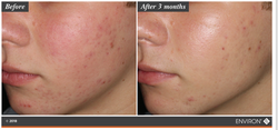 Clarity Sensitive Skin