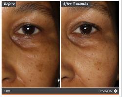 Eye & Skin Brightens