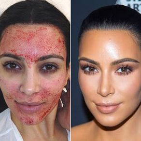 What is a Vampire Facial?