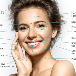 BOTOX - What is it used for and how does it work?