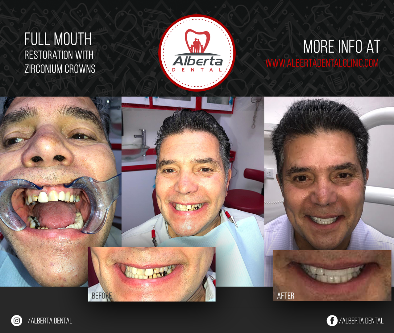 Full mouth restoration with zirconium cr