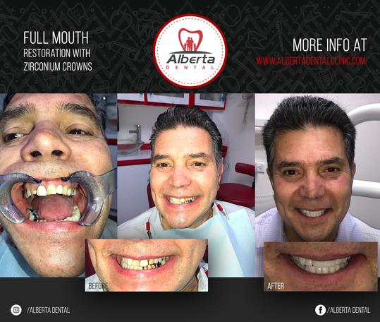 Full mouth restoration with zirconium cr