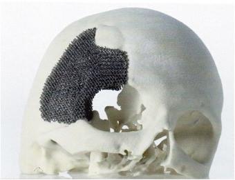 3D напечатанная часть черепной пластины