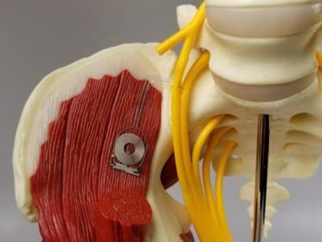 Создан биоразлагаемый имплантат для электростимуляции нервных окончаний
