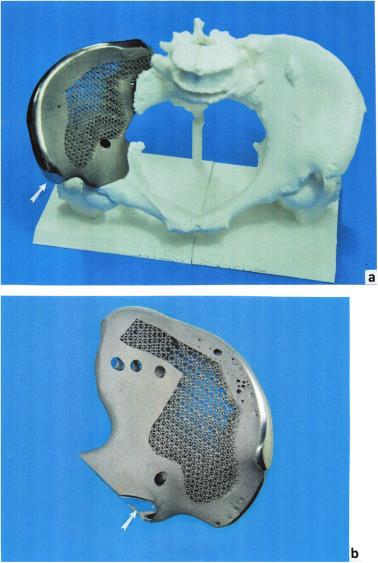 Имплант таза, напечатанный на 3D принтере