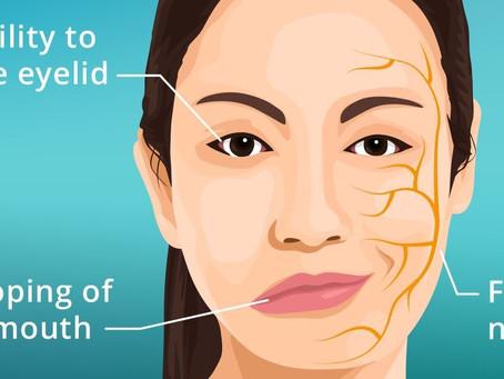 שיתוק עצב הפנים על שם בל, מה זה ומה הטיפול היעיל ביותר?