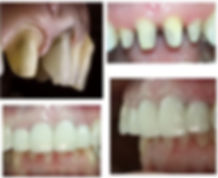 protesis dental collado villalba