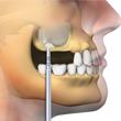 implantes dentales collado villalba