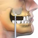 protesis dental collado villalba