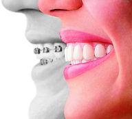 ortodoncia villalba