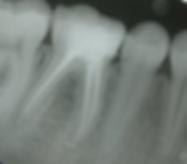 endodoncia collado villalba