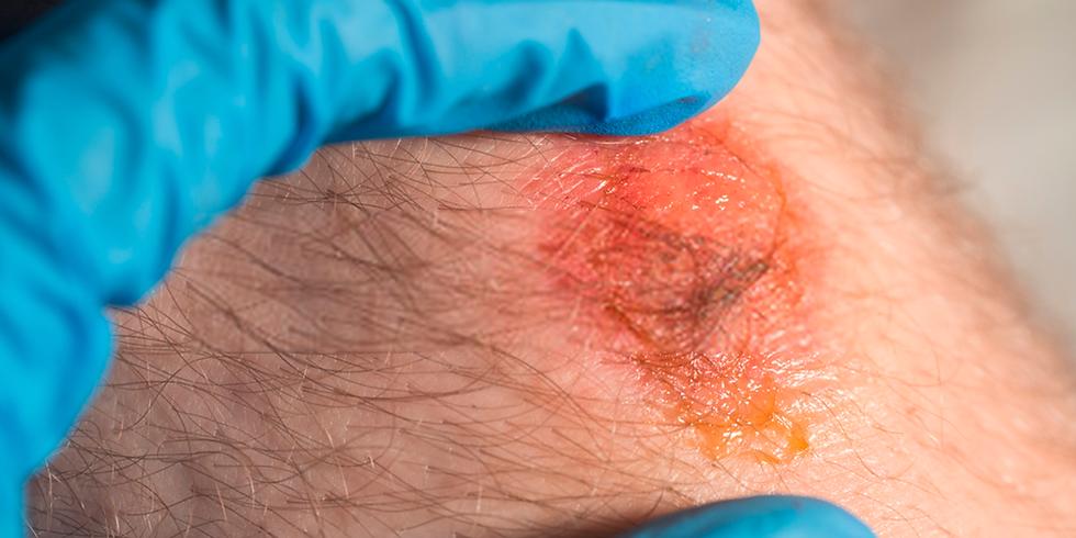[2021-10] Papel da Inflamação na Reparação Cutânea