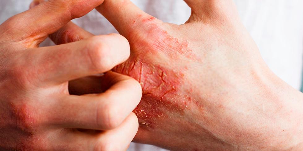 [2021-7] Microbioma Cutâneo e Feridas: Novos Alvos Moleculares para Promover a Cicatrização