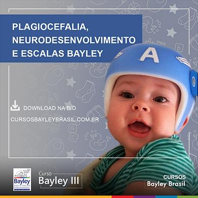plagiocefalia.png