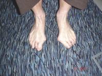 Fußschmerzen - Hallux valgus