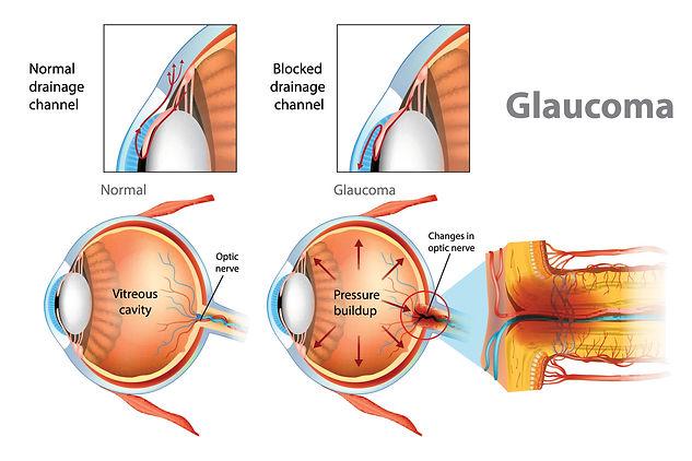 glaucoma1.jpg
