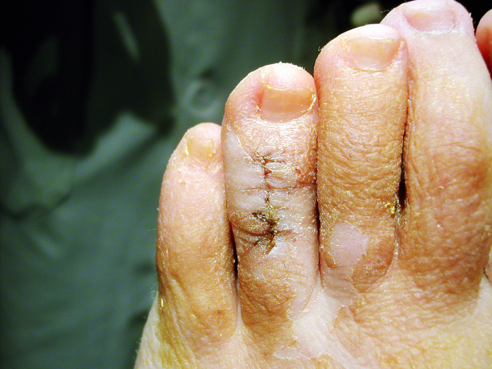 Cirugía Ambulatoria del Pie