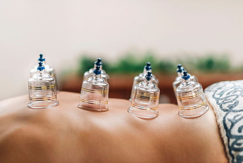 cupping therapy for pain, inflammation, blood flow, relaxation, well-being, and as a type of deep-tissue massage