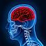 brain-injury.png