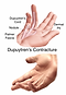 Dupuytren's-Contracture-2-347x500.png