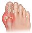 gout-treatment-Northern-Kentucky-Cincinn