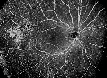超広角光干渉断層計・血管造影装置を導入しました