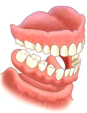 Dentures-small.jpg