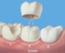 dental-crown.jpg