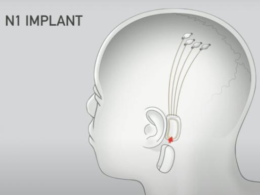 Neuralink, de Elon Musk, quer transmitir música direto para seu cérebro