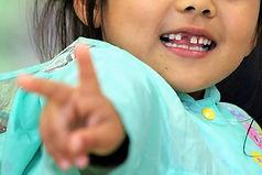 歯科 歯医者 予防