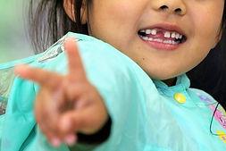 歯科 小児 予防