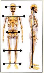 SignsandSymptoms-TMD-Skeletal-Posture.jp