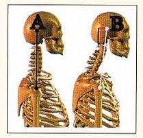 SignsandSymptoms-TMD-H&N-Posture.jpg