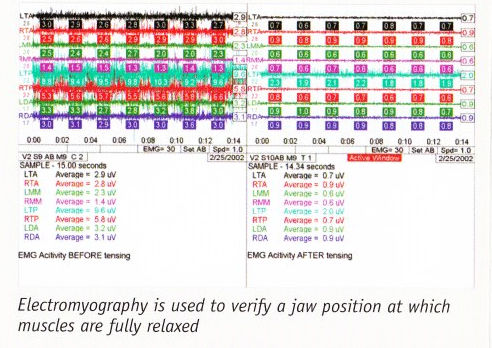 EMG1.jpg